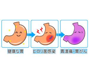 ピロリ菌から胃癌を発症する説明画像